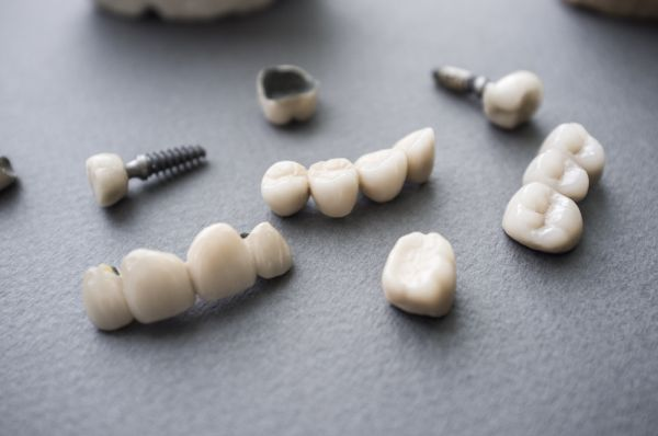 How Long Do Dental Crowns Last?