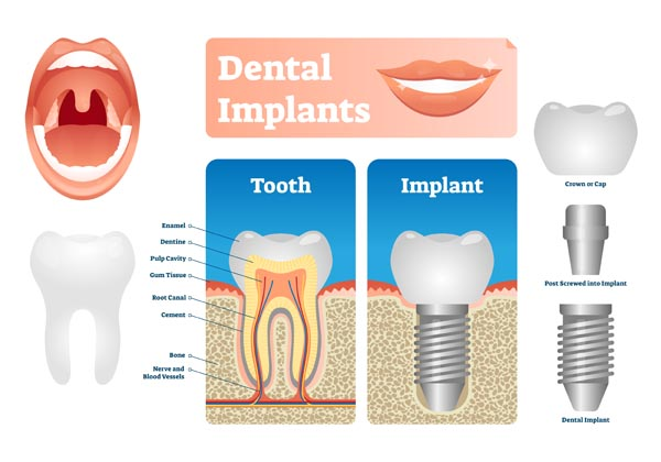 What Are Dental Implants And How Can They Replace Missing Teeth?