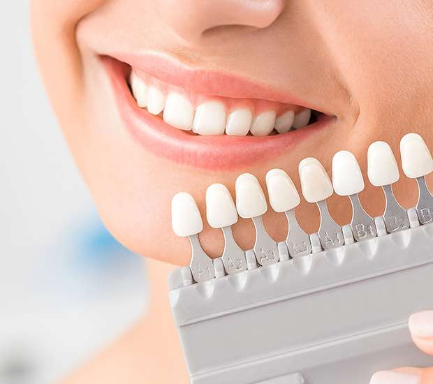 Stamford Dental Veneers and Dental Laminates